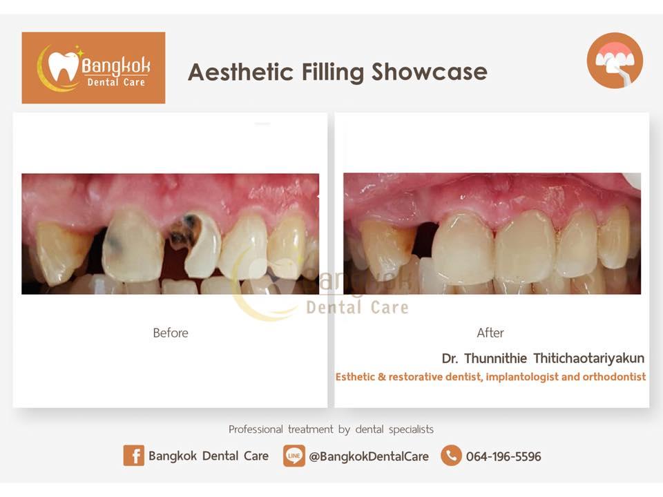 Aesthetic fillings