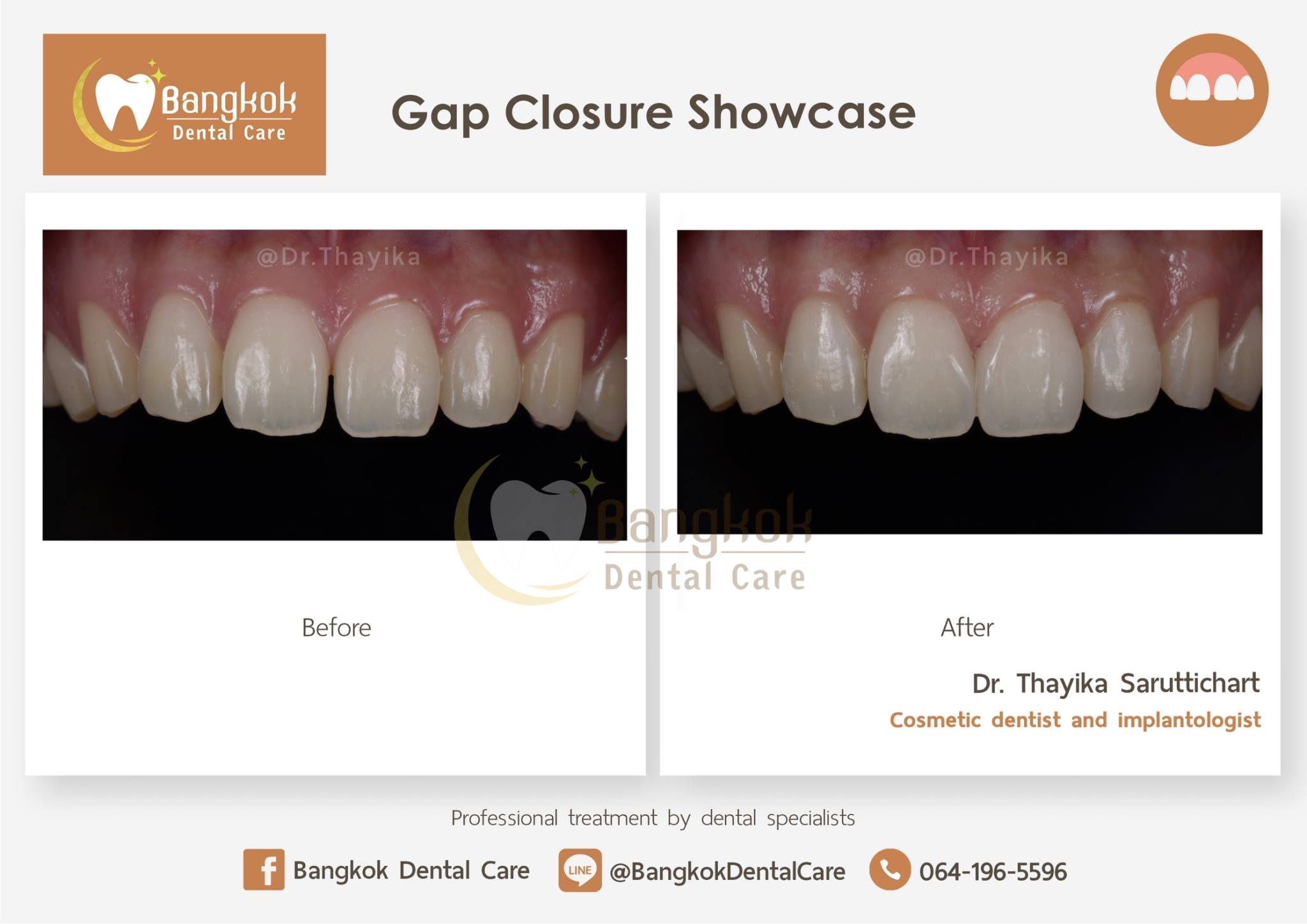 Gap Closure