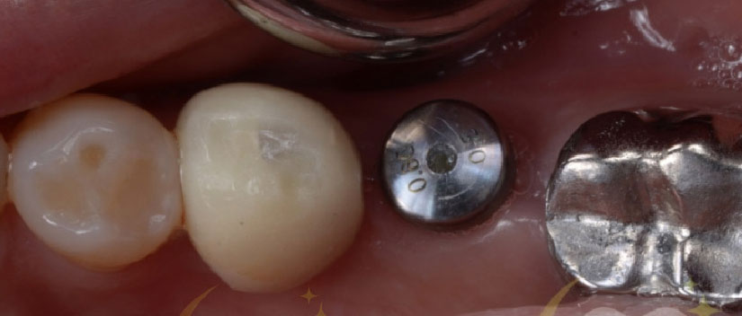 Before-Dental Crown